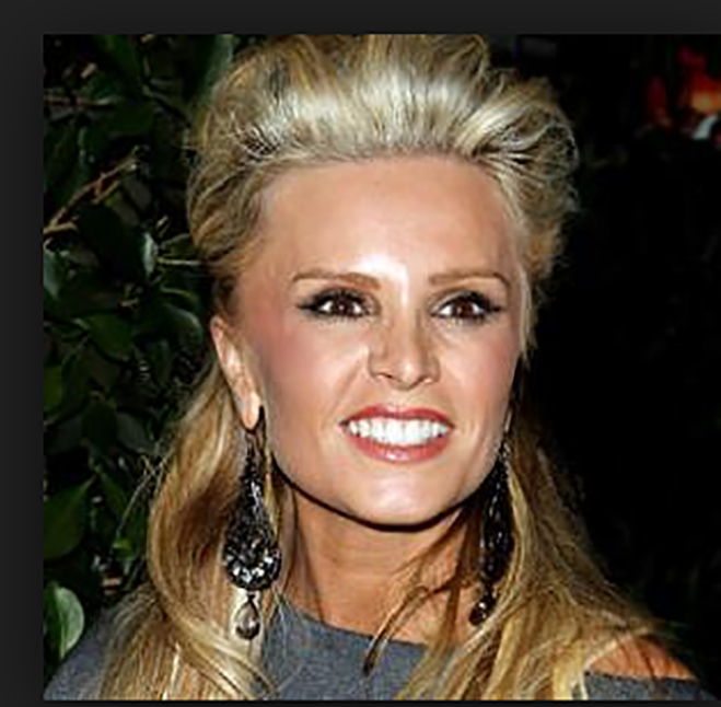 Tamra Orange County Housewife Plastic Surgery