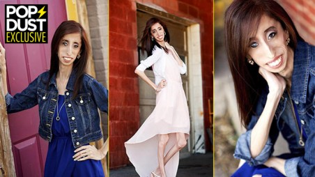 Worlds Ugliest Woman Dating Diet Bullying Lizzie Velasquez