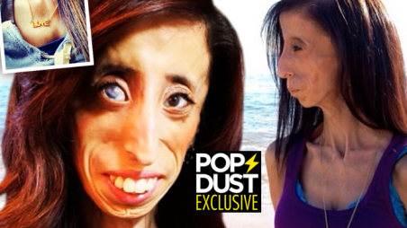 Worlds-Ugliest-Woman-Photos-Syndrome-Motivational-Speaking-Lizzie-Valasquez-FE