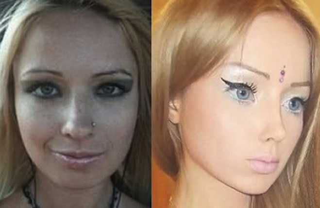 Human barbie Before Photos Plastic Surgery Crazy Valeria Lukyanova