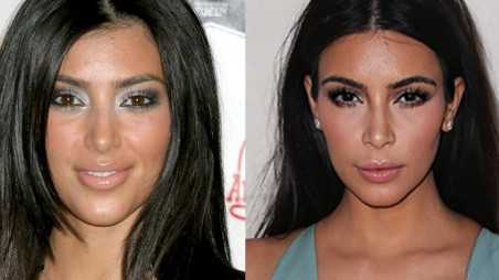 Kim Kardashian Homewrecke, Nose Genie feature