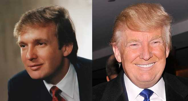 Donald Trump Hair Mystery Combover Toupee Transplant