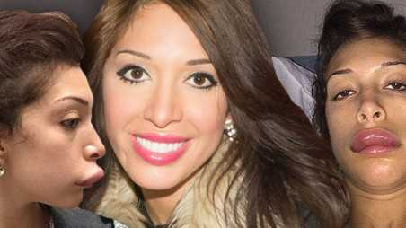 Farrah Abraham Lips Implants Bad Plastic Surgery
