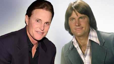 Bruce Jenner Breast Implants Gender Reassignment Transformation