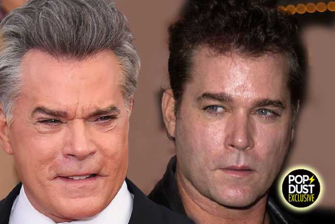 Changing Face of Ray Liotta—Plastic Fantastic or Au ...